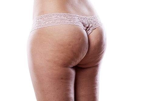 shock wave therapy - cellulite