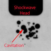 Cavitationimage