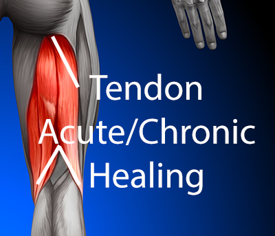 Shock wave therapy - Hamstrings