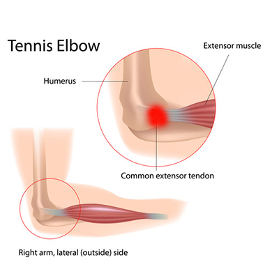 Shock Wave Therapy Tennis Elbow